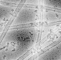 Průřez neurony s viditelnou strukturou mikrotubulů