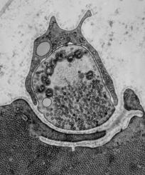 Elektronová mikrofotografie neuromuskulární synapse